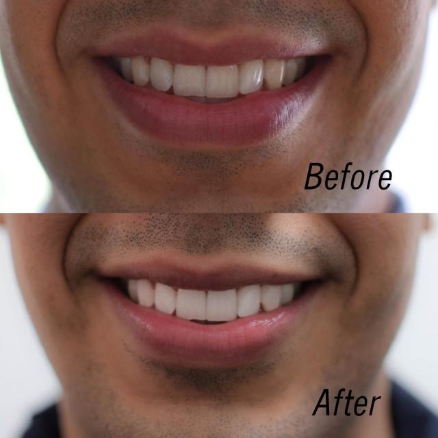 collage_teeth